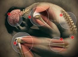 Acute pain 4